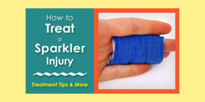 Treating a Sparkler Injury image